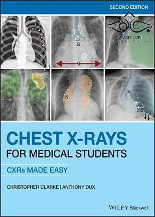 Chest X-Rays for Medical Students: CXRs Made Easy 2nd Edition2020 اشعه ایکس قفسه سینه برای دانشجوی پزشکی
