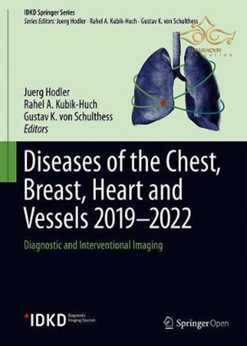 Diseases of the Chest, Breast, Heart and Vessels 2019-2022: Diagnostic and Interventional Imaging (IDKD Springer Series) 1st ed. 2019 Edition, Kindle Edition بیماری های قفسه سینه ، سینه ، قلب و عروق 2019-2022: تصویربرداری تشخیصی و مداخله ای
