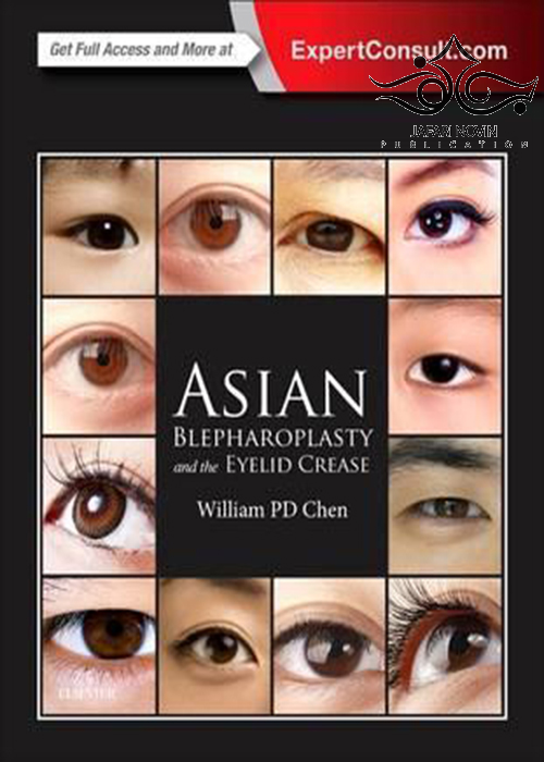 Asian Blepharoplasty and the Eyelid Crease 3rd Edition2015 بلفاروپلاستی آسیایی و چین پلک