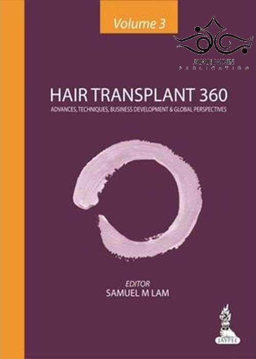 Hair Transplant 360 1st Edition2014 کاشت مو 360