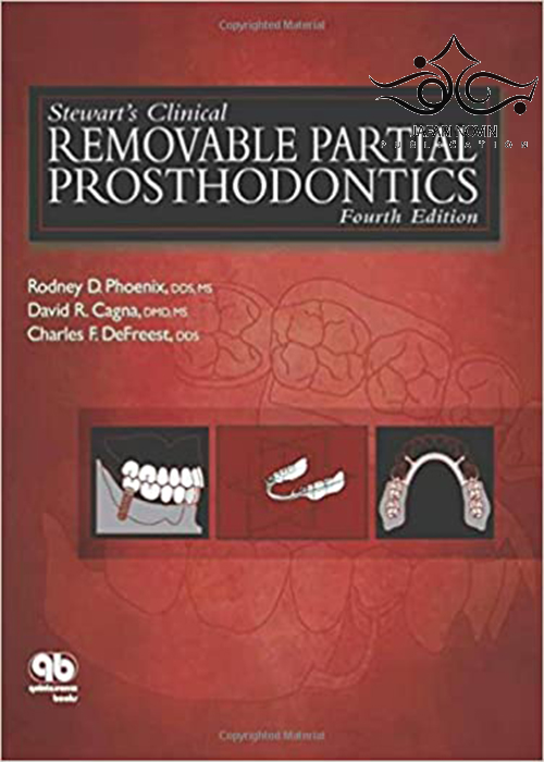 Stewart's Clinical Removable Partial Prosthodontics 4th Edition2008 پروتزهای متحرک بالینی